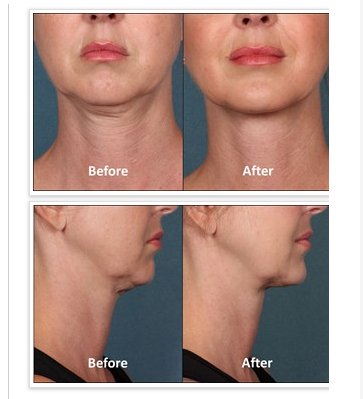 Eliminating the Dreaded Double Chin with Kybella™ Injections