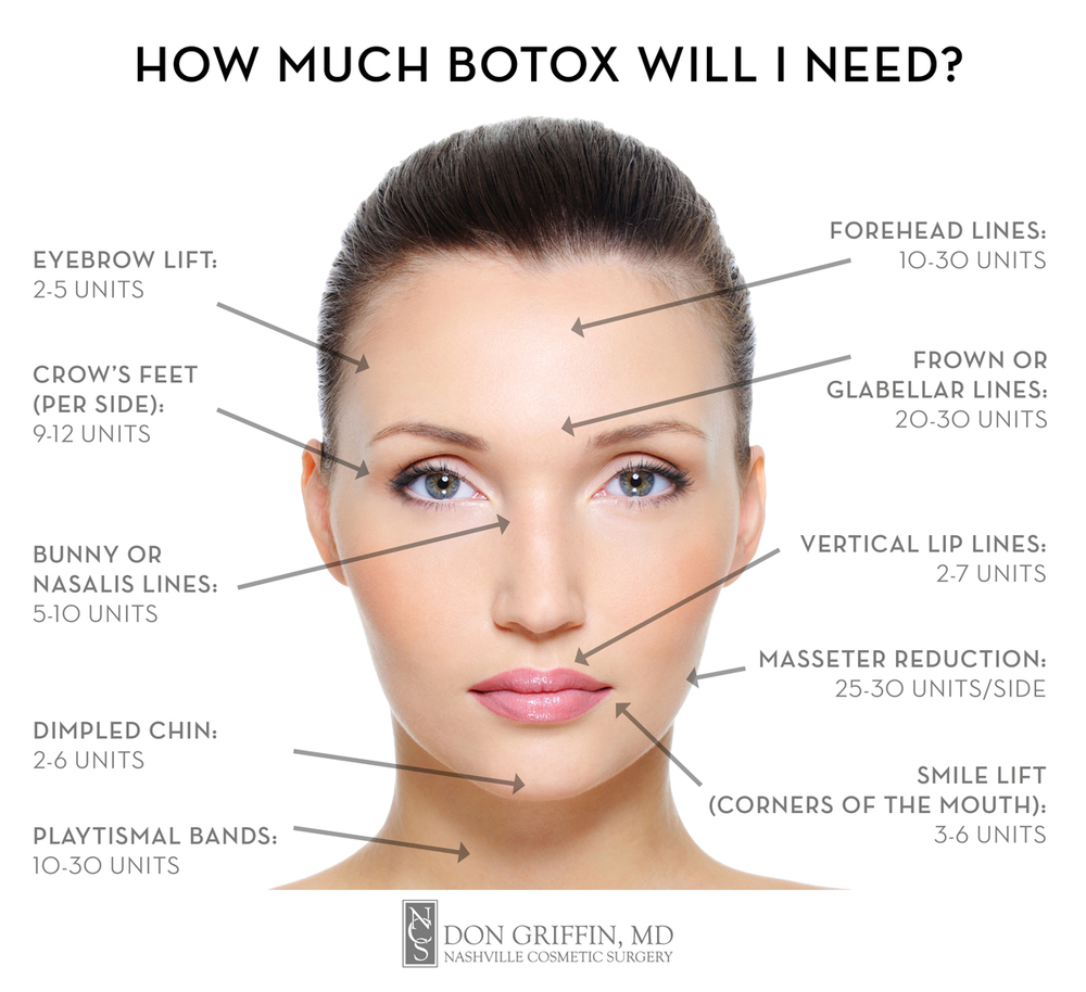 How Much Botox Will I need? Nashville Cosmetic Surgery