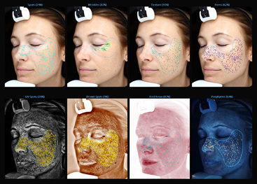 The VISIA technology allows you our staff to evaluate and measure your skin conditions like never before.