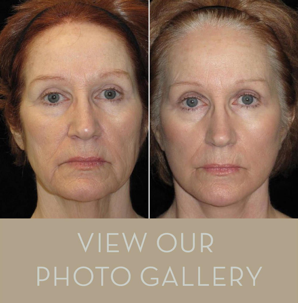 Explore Nashville Cosmetic Surgery's Patient Result Photo Galleries