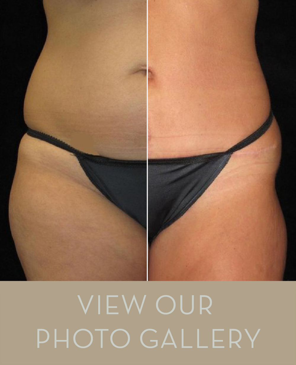 Explore Nashville Cosmetic Surgery's patient results photo gallery