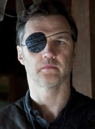 The Governor (played by David Morrissey)'s new eye patch.