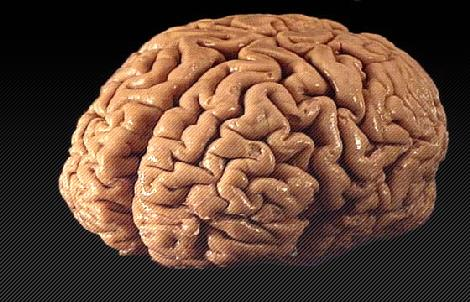 brain4_nuncscio.jpg