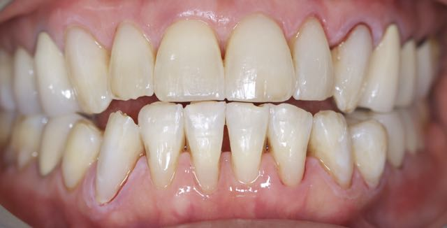 Patient after composite restorations -- minimal tooth structure sacrificed. Multiple layers of differing shades and opacities of composite used to mimic natural tooth structure