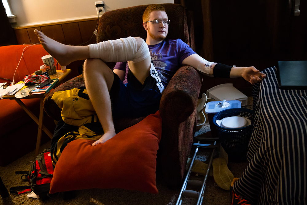 Eddie Allison, 18, has been confined to a chair in his parent's home as he recovers from injuries suffered after being hit by an alleged drunken driver while trying to change a flat tire on Illes Avenue behind White Oaks Mall on Feb. 15th. Allison has gone through six surgeries and will never be able to walk normally again after having half of his calf muscle removed. Justin L. Fowler/The State Journal-Register
