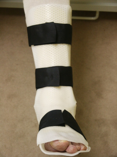 Bivalve Ankle Splint