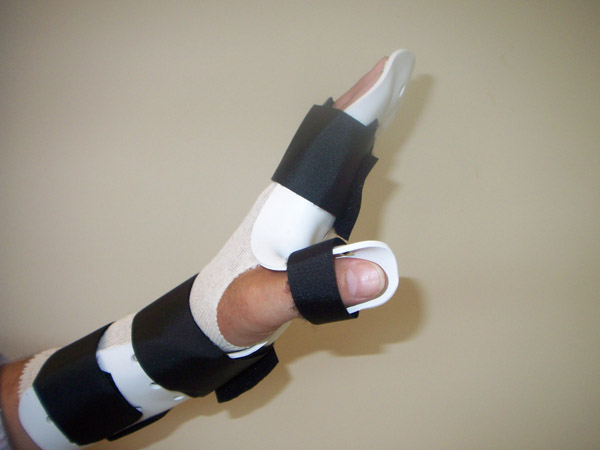 Forearm based Extension Splint