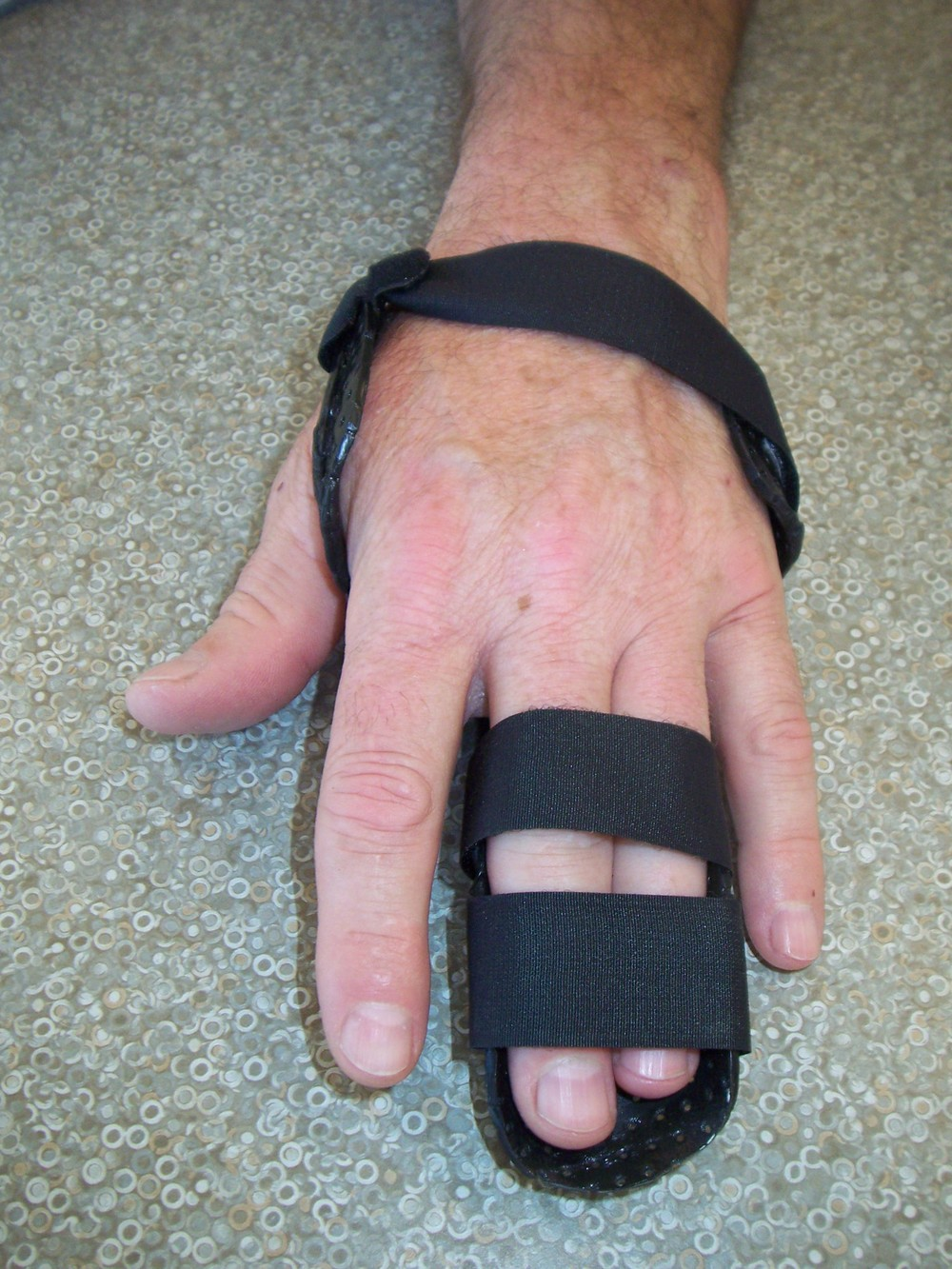 Hand based Digit Extension Splint