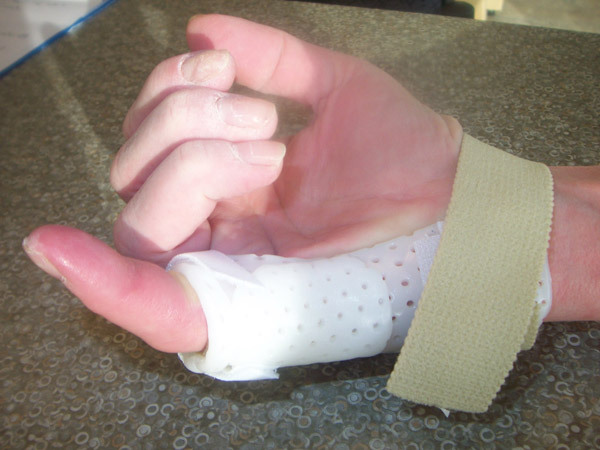 MP Blocking Splint