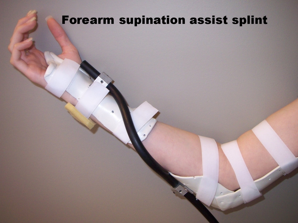 Rolyan Supination Splint