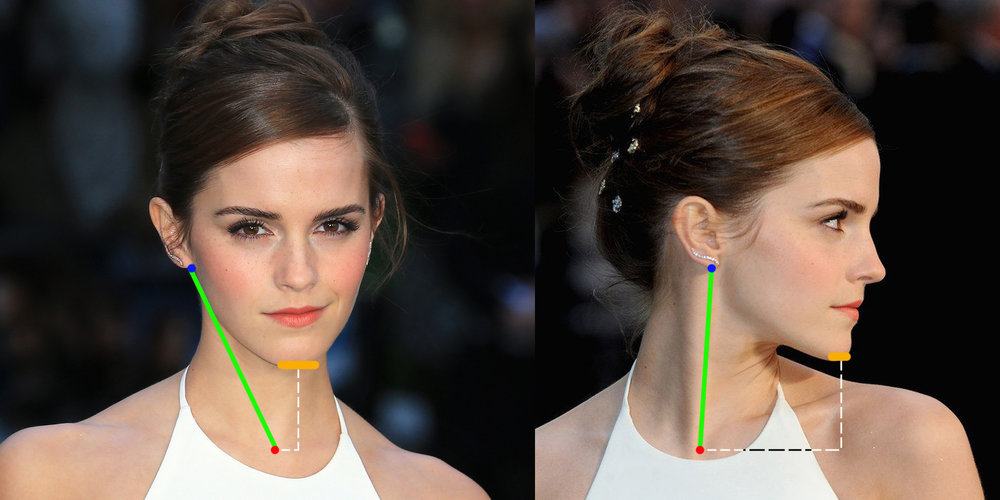 ear alignment to pit of neck example image.jpg