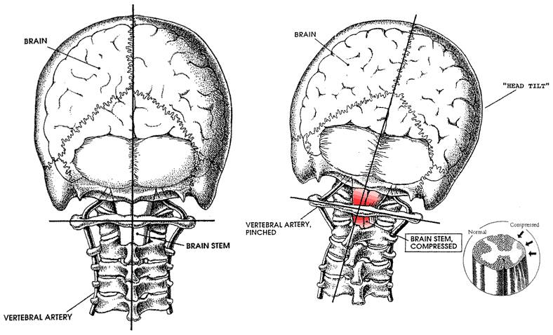 "The Upper Cervical spine is the ""Houston Control"" of the body."