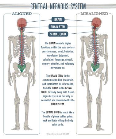 misaligned-spine