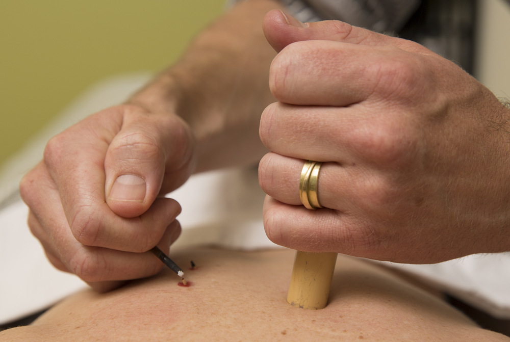 Japanese rice-grain moxibustion - technique