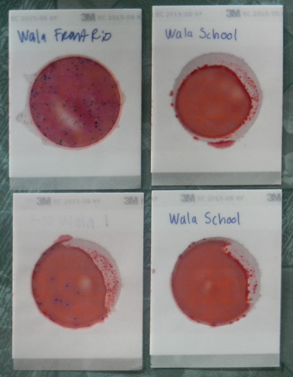 Water tests from Wala. All the dots are bacterial colonies from fecal contamination.