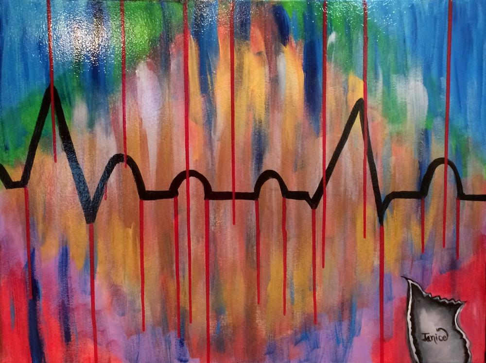 EKG.jpg
