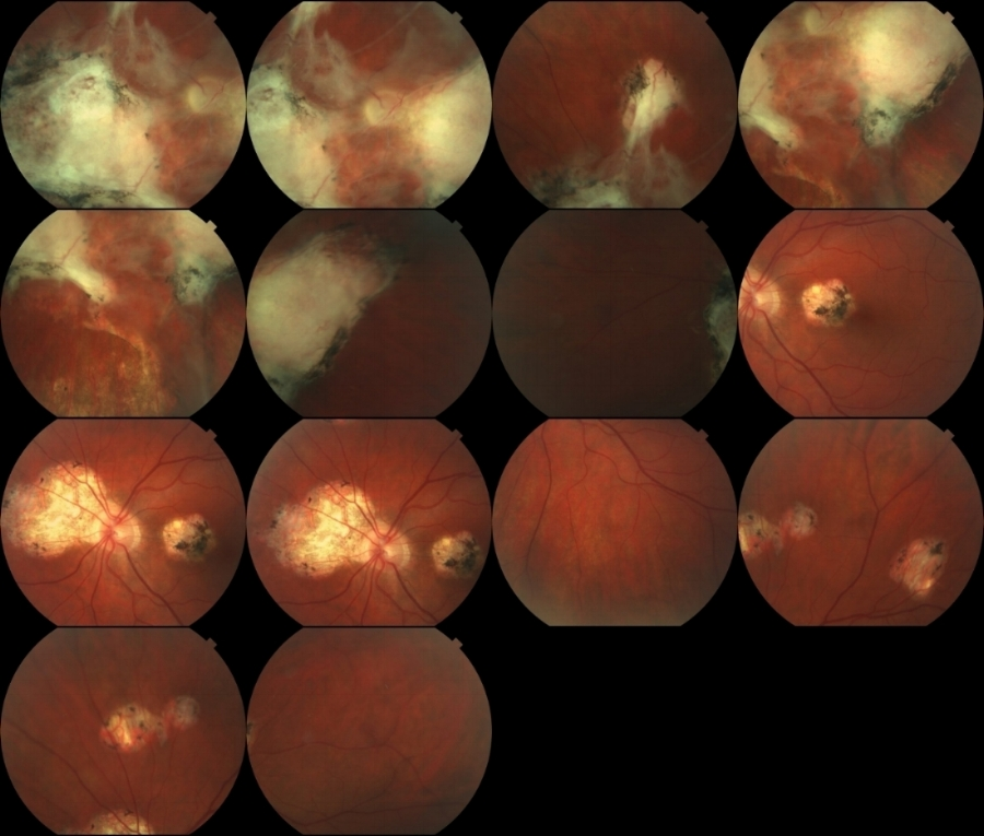 Patrick Anderson's retinal scans