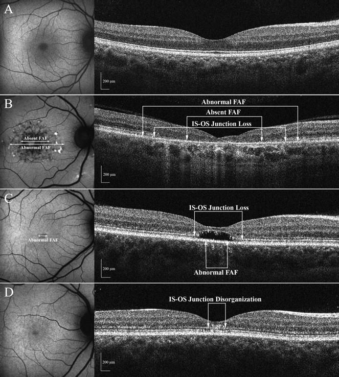 OCT at comly eye care