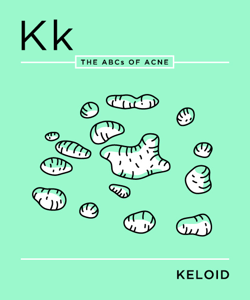 ABCs-of-Acne-11-keloid.jpg