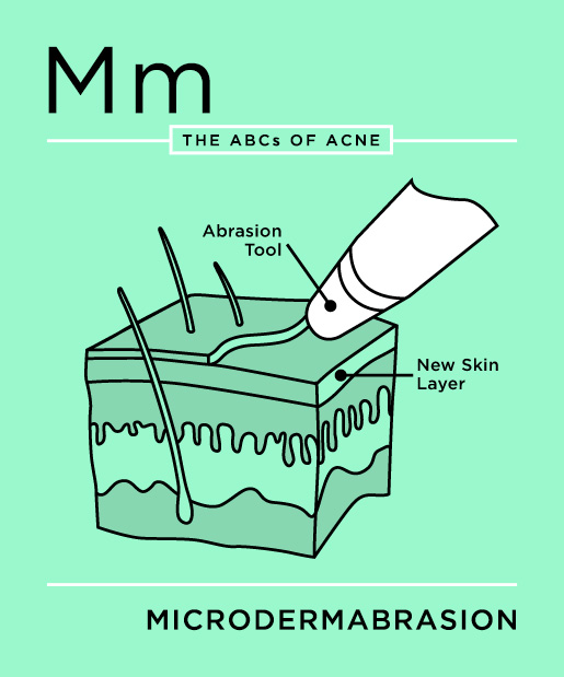 ABCs-of-Acne-13-microdermabrasion.jpg