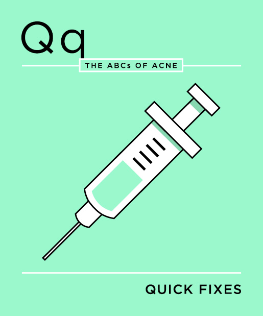 ABCs-of-Acne-17-quick-fixes.jpg