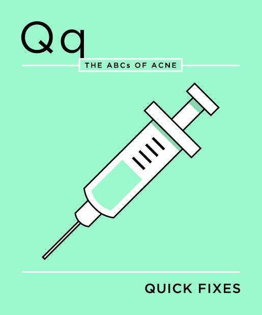 ABCs-of-Acne-17-quick-fixes.jpg
