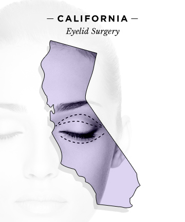who-wants-what-done-california-eyelid-surgery.jpg
