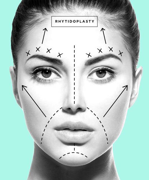 plastic-surgery-05-Rhytidoplasty.jpg
