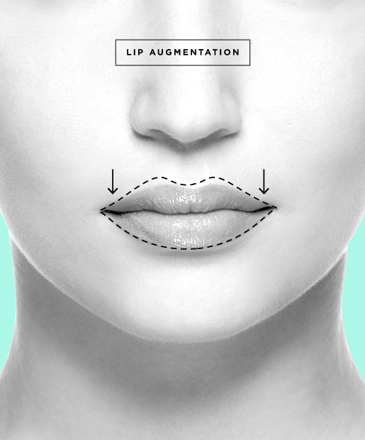 plastic-surgery-06-Lip-Augmentation.jpg