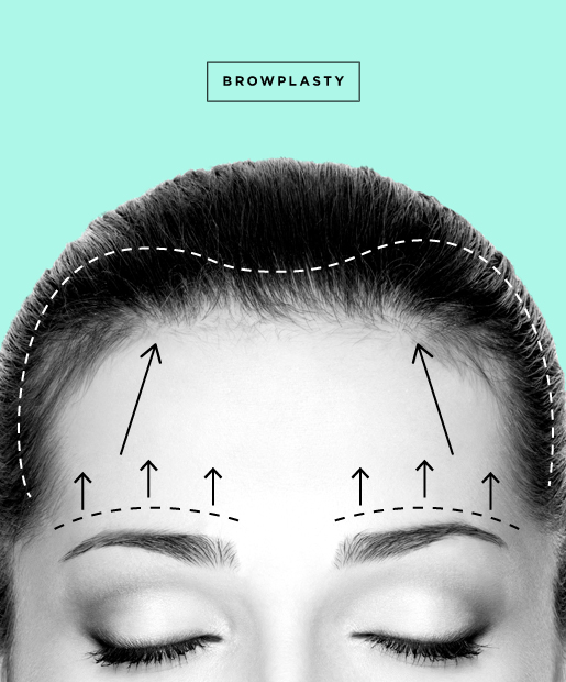 plastic-surgery-10-Browplasty.jpg