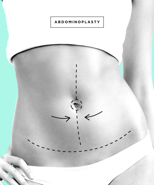 plastic-surgery-09-Abdominoplasty.jpg