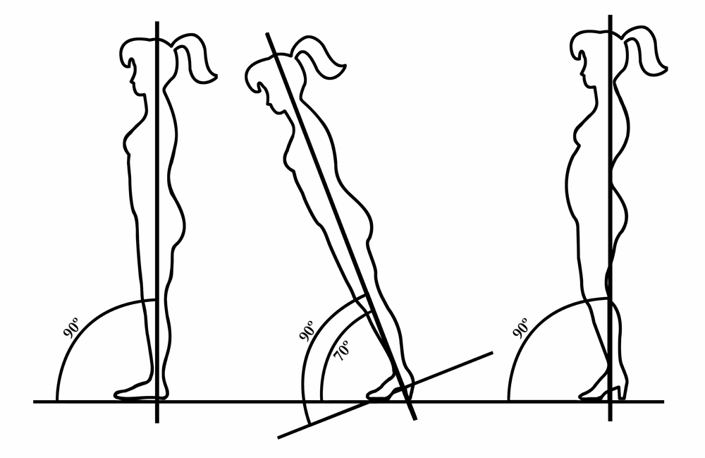 CONSIDER THE MOVEMENT COMPENSATIONS THAT CAN BE CREATED BY HEELS. IN THE THIRD IMAGE, NOTICE THAT THE PELVIS HAS COME FORWARD, THE RIBS HAVE PUSHED OUT IN FRONT, THE KNEES ARE BENT AND THE HEAD HAS COME FORWARD.