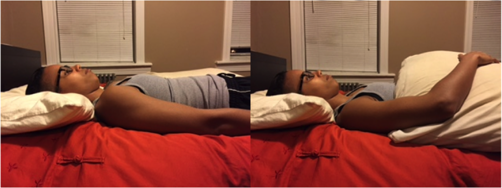 Pillow hugging for shoulder pain. notice in the picture on the right how the shoulder is able to relax and drop back into the socket.