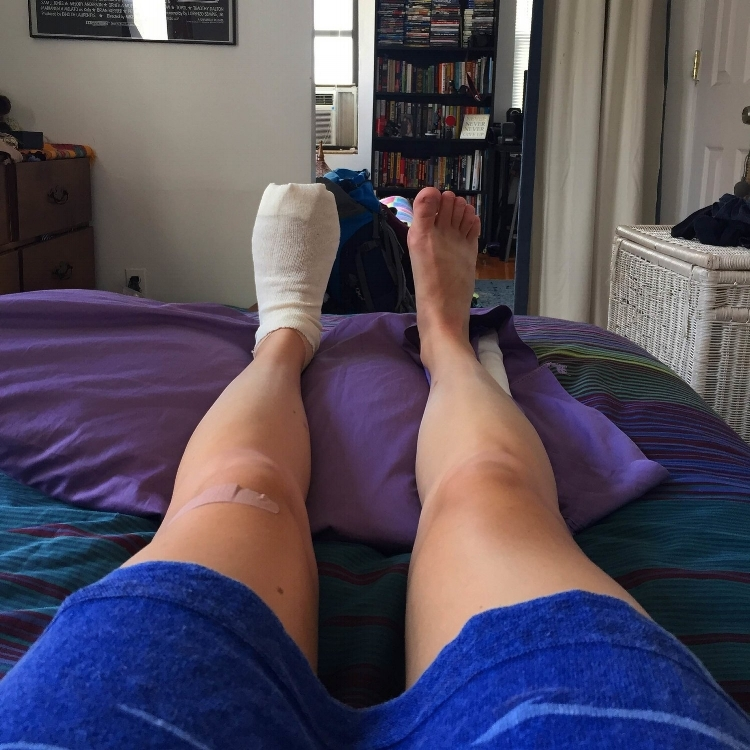 Here is my foot being held hostage post-surgery. I was in Brooklyn the morning-of, then went to Queens for the procedure, and Hell's Kitchen for my next stay in the city. I lived in a 5th floor walk-up on an air mattress that deflated overnight. :)