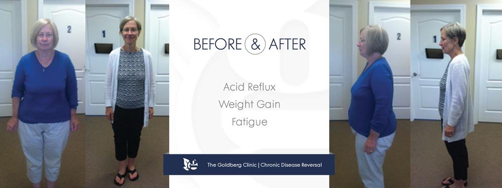 GC-BA_acidreflux.png