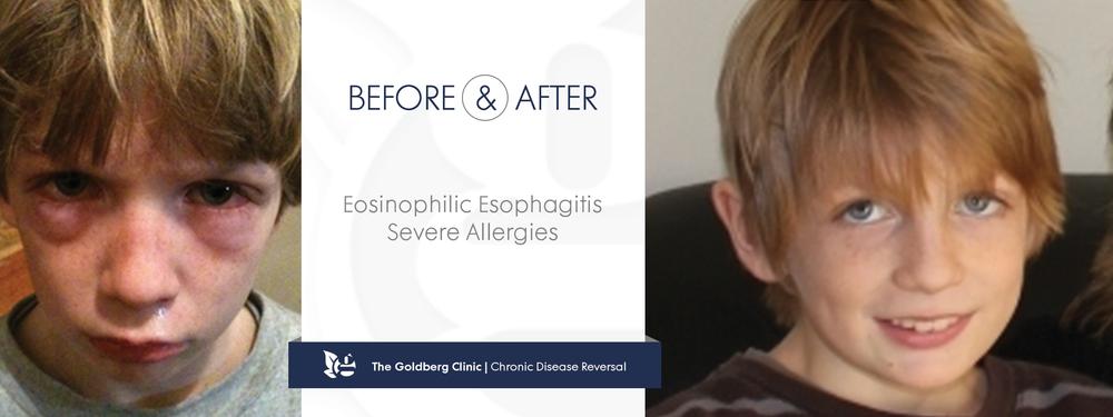 Eosinophilic Esophagitis Reversed