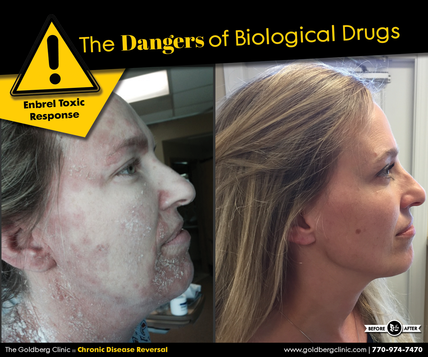 The Dangers of Biological Drugs (Part I) — The Goldberg Clinic for