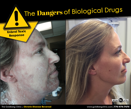 Heather (see pictures above)came to the Goldberg Clinic in June 2015 after having suffered a severe allergic reaction to Enbrel, a biological drug prescribed for her Rheumatoid Arthritis. Following injections, she saw swelling and redness around the injection site which then gradually progressed into a severe full body rash. Heather was hospitalized and prescribed Prednisone to suppress the allergic response. The nurse informed her that she had experienced a toxic reaction to Enbrel.