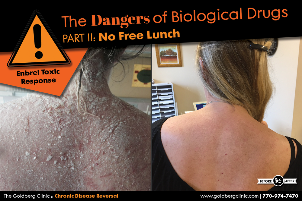 Heather (see pictures above and below) came to the Goldberg Clinic in June 2015 after having suffered a severe allergic reaction to Enbrel, a biological drug prescribed for her Rheumatoid Arthritis. Following injections, she saw swelling and redness around the injection site which then gradually progressed into a severe full body rash. Heather was hospitalized and prescribed Prednisone to suppress the allergic response. The nurse informed her that she had experienced a toxic reaction to Enbrel.
