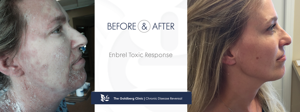 Enbrel Side Effect Before and After