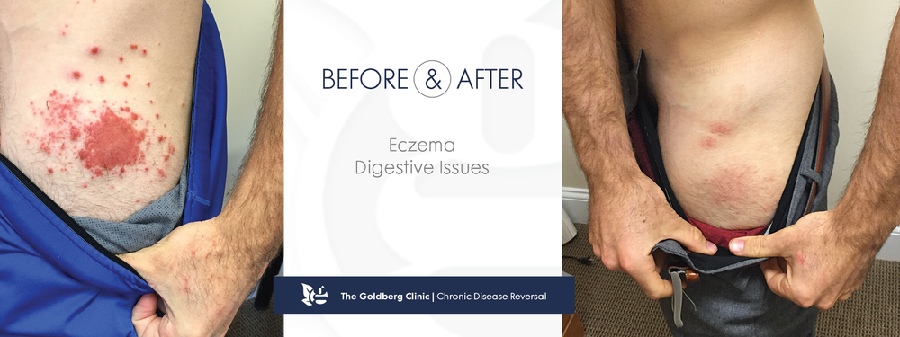 GC-BA_eczema1.png