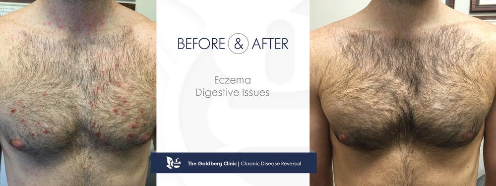 GC-BA_eczema4.png
