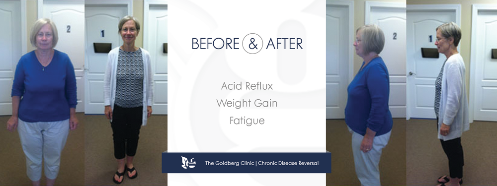 GC-BA_acidreflux copy.png
