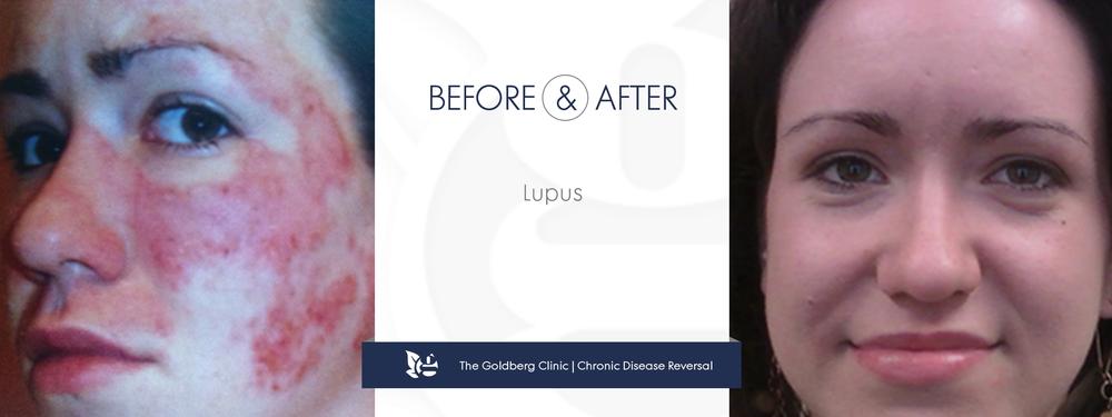 Lupus