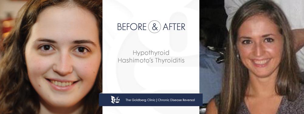 GC-BA_hyperthyroid.png
