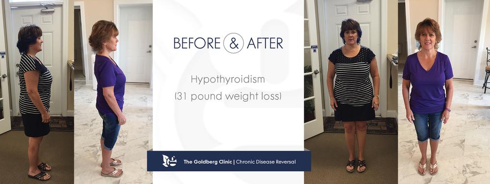 GC-BA_hypothyroidism.png