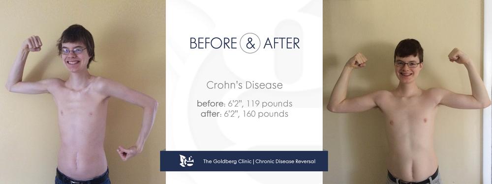 Reverse Crohns Disease