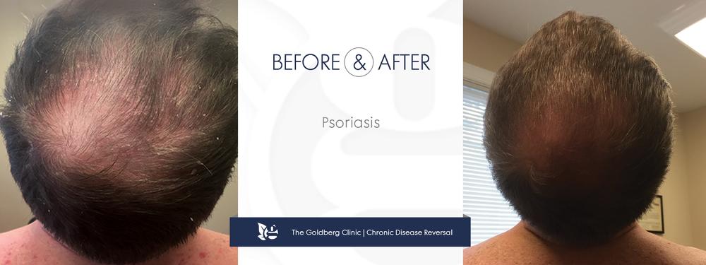 GC-BA_psoriasis_scalp.png