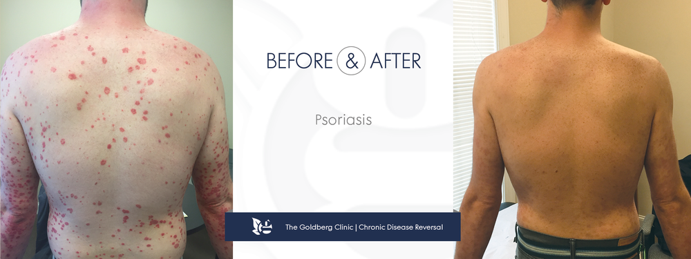 GC-BA_psoriasis_back.png