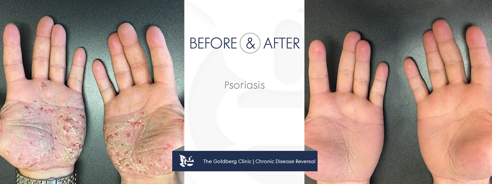 Psoriasis Before and After